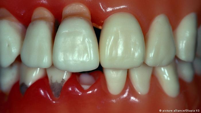 Si se sufre de periodontitis, las bacterias se anidan en la cavidad bucal.