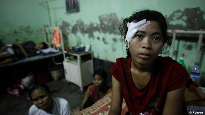 Hla Hla Myint, a victim of recent violence with a head gunshot wound, rests in a bed at a hospital in Kyuktaw township October 25, 2012. (Photo: Reuters)