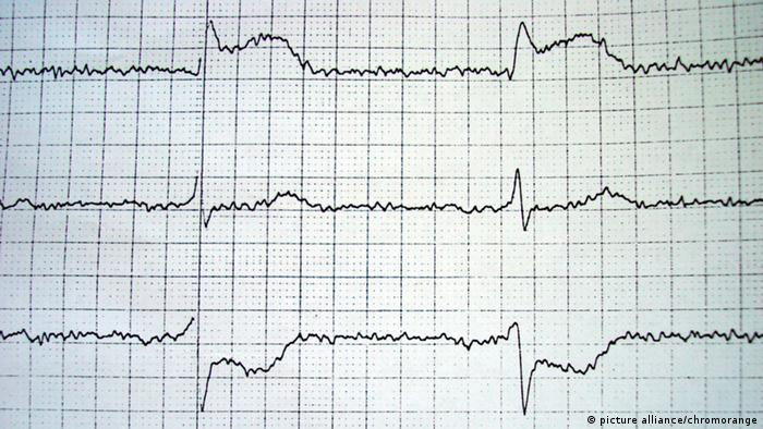An electrocardiogram with one problematic curve
