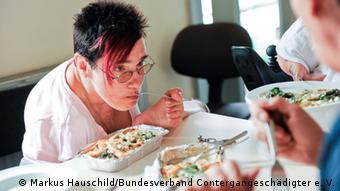 Eine Frau benutzt zum Essen statt ihrer Hände ihren linken Fuß (Foto: Markus Hauschild/ Bundesverband Contergangeschädigter e. V.)