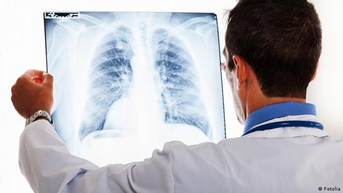 Symbolbild Lungenentzündung