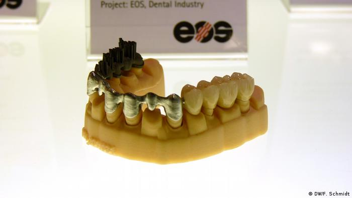 Dental implants at different stages of production (l to r), printed by selective laser melting Copyright: Fabian Schmidt/DW