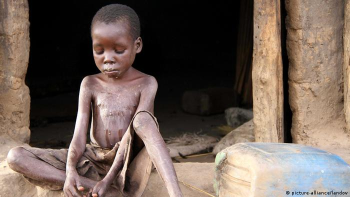 An emaciated young victim of nodding disease sits in front of a hut ( XINHUA /LANDOV)