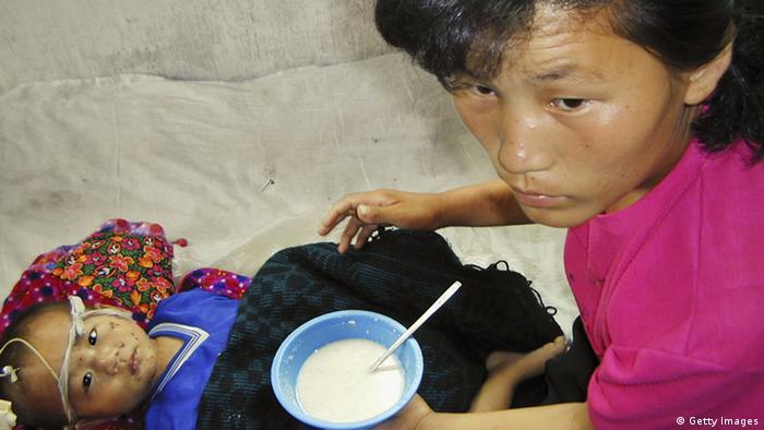 Eine Helferin ernährt ein vom Hunger geschwächtes Kind (Foto: Photo by Gerald Bourke/WFP via Getty Images).