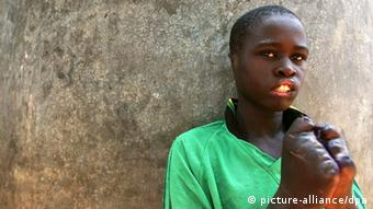 A young Ugandan victim of the LRA who had his fingers, ears and lips hacked off with a machete
