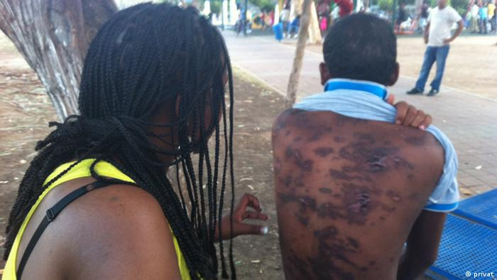 African man with scars on his back Copyright: privat