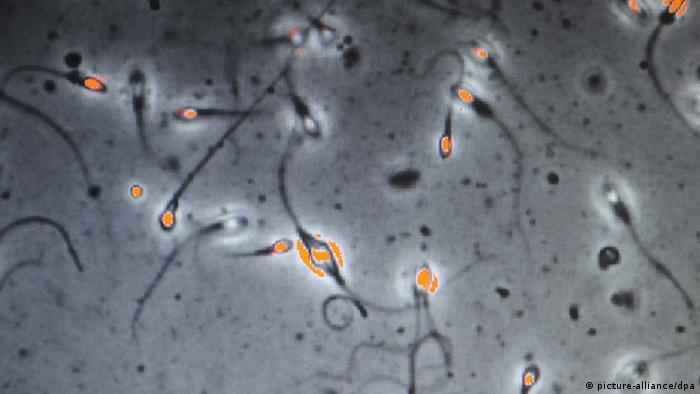 Investigating sperm quality of fertile men(Photo: dpa)