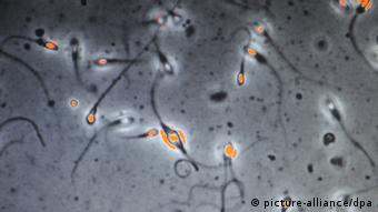 Investigating sperm quality of fertile men. (Photo: Martti Kainulainen/LEHTIKUVA/dpa)