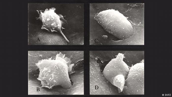 Wandernde Krebszelle (DKFZ)