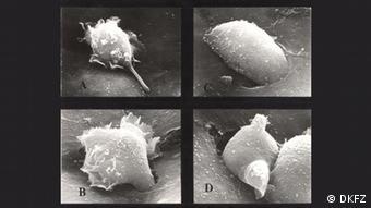 Wandernde Krebszelle (Foto: (Foto: DKFZ)