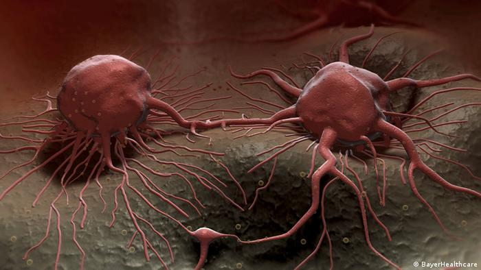Krebszellen unter einem Rasterelektronenmikroskop (Foto: BayerHealthcare)