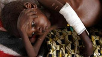 A child suffering from malnutrition laying on a blanket