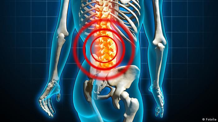 انجام یوگا در کاهش دردهای مزمن سیاتیک، مفاصل و زانو تاثیر دارد. در یک آزمایش افرادی با درد مزمن کمر به مدت شش ماه به یوگا پرداختند که پس از آن کاهش ۷۳ درصدی درد کمر گزارش شده است.