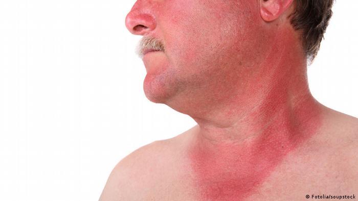 Symbolbild Sonnenbrand