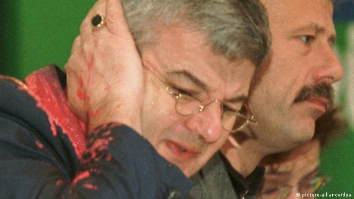 Von einem Farbbeutel getroffen faßt sich Bundesaußenminister Joschka Fischer erschrocken an sein rechtes Ohr. Der Farbbeutel wurde am Donnerstag (13.05.1999) während des Bündnis 90/Die Grünen-Sonderparteitages über den Kosovo-Krieg in Bielefeld von einem Mann auf Fischer geworfen. (Bild: dpa )