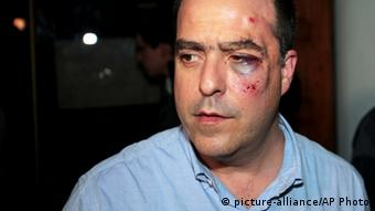 Opposition lawmaker Julio Borges arrives with a bruised face to his political party's headquarters before speaking to the press in Caracas, Venezuela, Tuesday, April 30, 2013