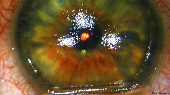 eee9ad551 مشاكل طول أو قصر النظر تنشأ عن خطأ في انسكار أشعة الضوء على الشبكية (أرشيف)