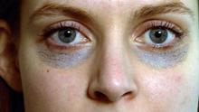 26.06.2013 DW fit und gesund Augenringe