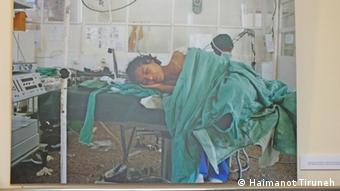 Fistula Center in Gondar Uni Krankenhaus in Äthiopien