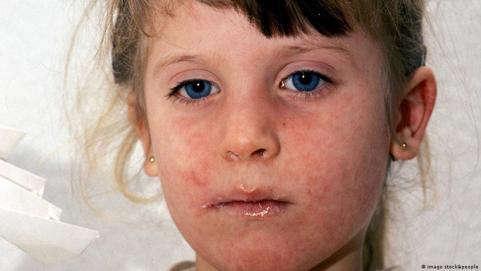 Europe is learning to fear Ebola, while refusing to vaccinate against measles | DW | 27.08.2014