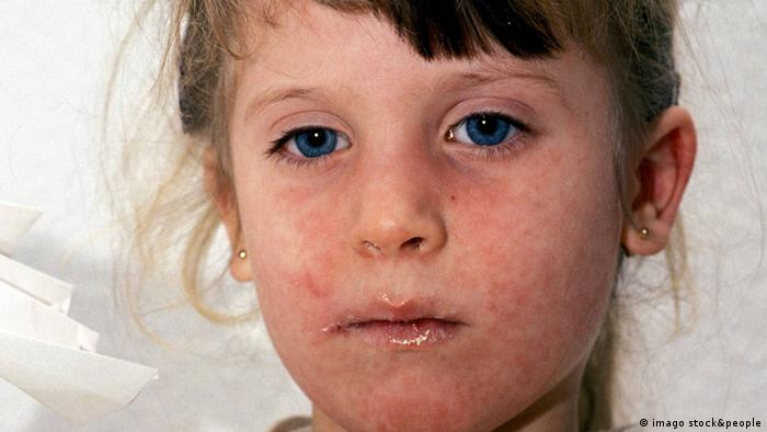 A girl with measles