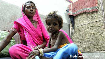 epa02930632 A photograph made available on 23 September 2011 showing an Indian tribal woman with her malnourished chilld inside the nutrition rehabilitation centre at Khalwa village, district Khandwa, 350 kilometers away from state capital Bhopal, Madhya Pradesh, India, on 22 September 2011. Reports state that the Khandwa district, a tribal dominated area, in which more than 7500 children in 100 villages suffering from acute malnutrition. As per the National Family Health Survey-3 more than 62.7 per cent of the children in the state are suffering from malnutrition. EPA/SANJEEV GUPTA