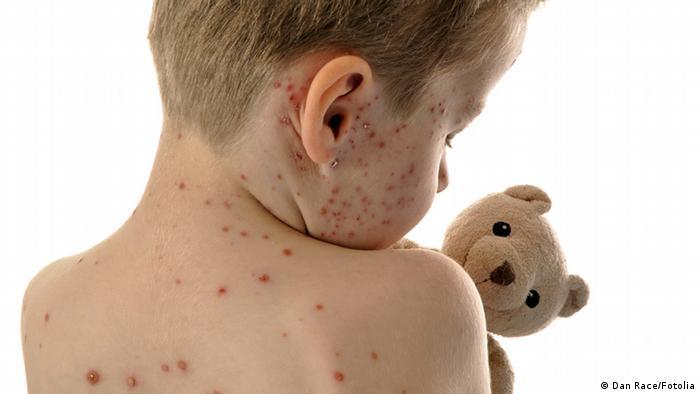 Criança coberta de bolinhas, de costas, abraça um ursinho.