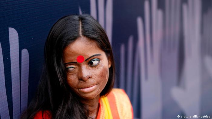 Bangladeshi acid survivor Hasina (Photo: Abir Abdullah)