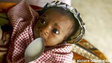 UNICEF-Bericht zu Kindersterblichkeit (picture-alliance/dpa)