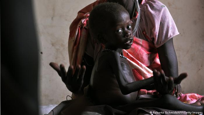 GettyImages 98451034 Two-year-old Dhoal sits on the lap of his mother Nyadol as she speaks to journalists while sitting in a ward along with other mothers tending to children suffering from severe malnutrition at a local hospital in the southeast Sudanese town of Akobo ROBERTO SCHMIDT/AFP/Getty Images