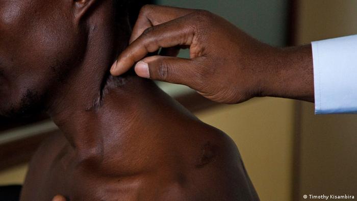 Überlebende des ruandischen Völkermordes von 1994 zeigen ihre vernarbten Verletzungen.