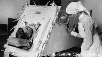 Eiserne Lunge Beatmungsgerät Polio