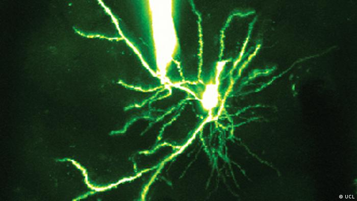A direct patch-clamp recording from a dendrite of a pyramidal cell in mouse visual cortex in the intact brain. The neuron has been filled with a fluorescent dye via the dendritic recording and imaged using a two-photon microscope. These recordings directly reveal the computations performed by the dendrites during visual processing. (Photo: UCL)