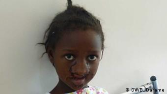 Hilfsaktion Noma in Bissau
