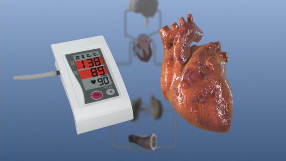 تغلب على ارتفاع ضغط الدم بلا أدوية منوعات نافذة Dw عربية على حياة المشاهير والأحداث الطريفة Dw 09 07 2018