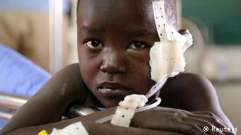An child at a hospital in Juba