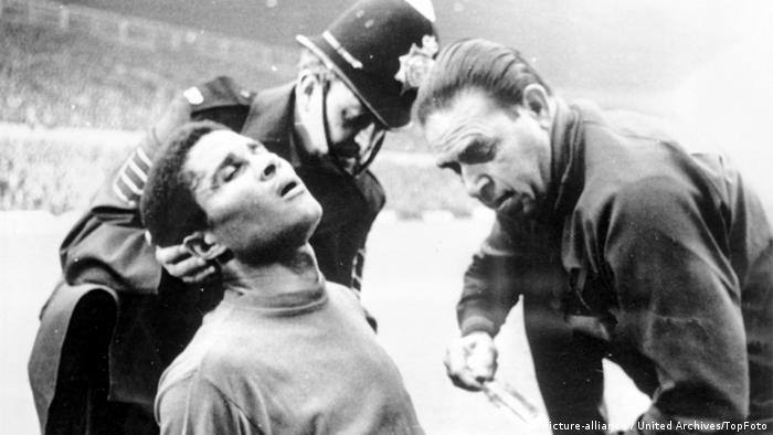 Eusebio wird im Spiel gegen Ungarn am 13. Juli 1966 am Kopf behandelt (Foto: picture-alliance / United Archives/TopFoto)