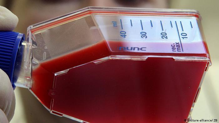 Cord blood Photo: Hendrik Schmidt/dpa