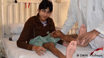 Babu, a youth has been suffering from polio since he was 2 years. After three months in hospital and an equal number of surgeries, he will go back home and hope to walk with calipers. (Photo: DW Murali Krishnan)