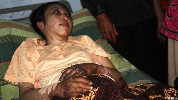 Erwiana Sulistyaningsih in bed with injuries