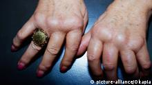 Orthopädie Medizin Rheuma Rheumatoide Arthritis oder progrediente chronische Polyarthritis an Hand mit Deformierung von Fingergrund und Fingermittelgelenke medicine orthopaedics rheumatism polyarthritis hand with deformation WA chronische Polyarthritis +++ picture-alliance / OKAPIA KG, Germany