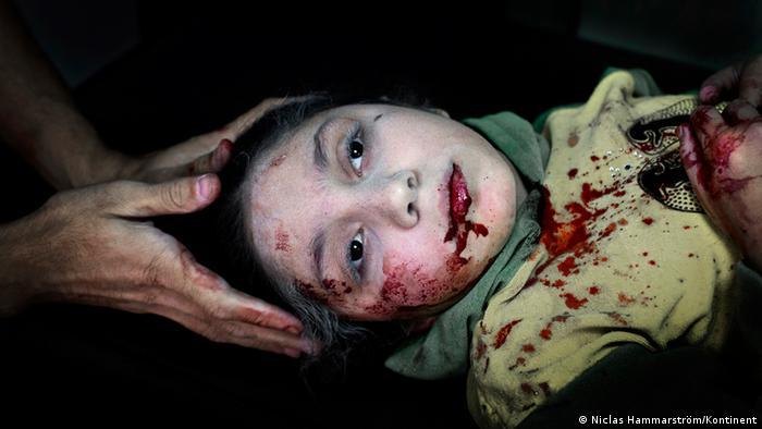 UNICEF Photo of 2013, Niclas Hammarstrom