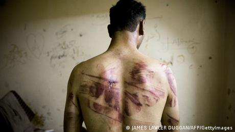 Syrian torture victim (JAMES LAWLER DUGGAN/AFP/GettyImages)
