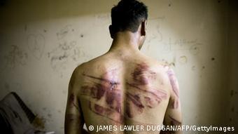 Syrien Folter Mißbrauch Symbolbild MIT BEDACHT VERWENDEN