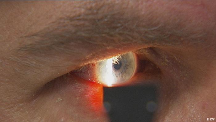 26.03.2014 DW FIT UND GESUND Augengrippe