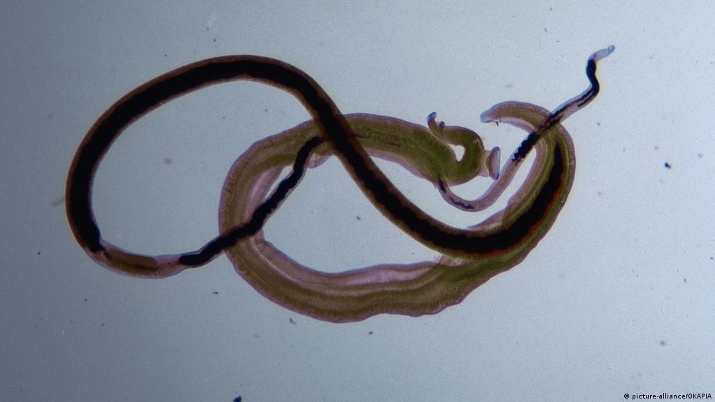 schistosomiasis malawi-tó)