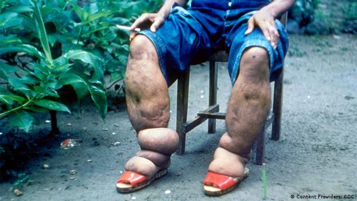 Angeschwollene Beine eines an Elephantiasis erkrankten Mannes, der auf einem Stuhl sitzt