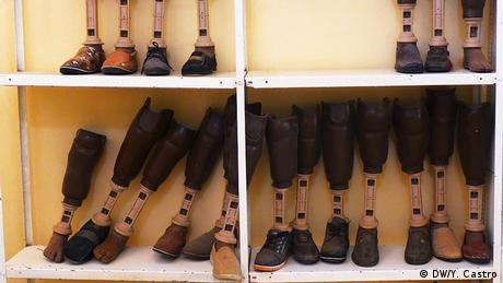 Rows of prosthetic legs and feet