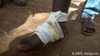 Bandaged foot of an African migrant, injured by razor wire. Photo: Guy Hedgecoe