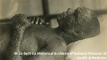 """English: Smallpox ; Ref:Reeve 48135 Date 3 April 2013, 22:42:50 Source http://www.flickr.com/photos/medicalmuseum/4311800266/in/photostream Author Otis Historical Archives of """"National Museum of Health & Medicine"""" (OTIS Archive 1)"""